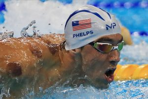 michael-phelps-olympics-cupping